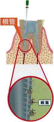 根管内の細菌イメージ
