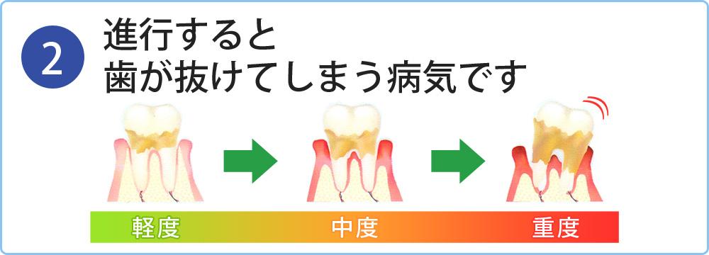 進行すると歯が抜けてしまう病気です