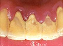 プラークは歯にくっついてから時間が経つと歯石になります。歯ブラシでは取ることができません。