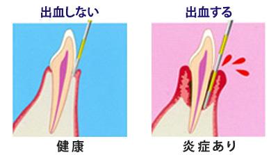 歯ぐきの出血検査
