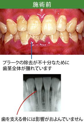 歯周炎治療前
