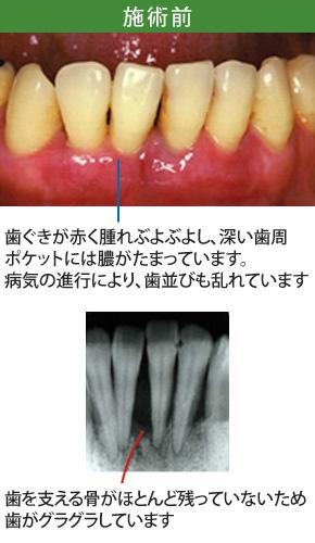 重度歯周炎治療施術前