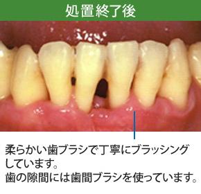 重度歯周炎治療処置後