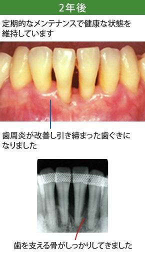 重度歯周炎治療2年後