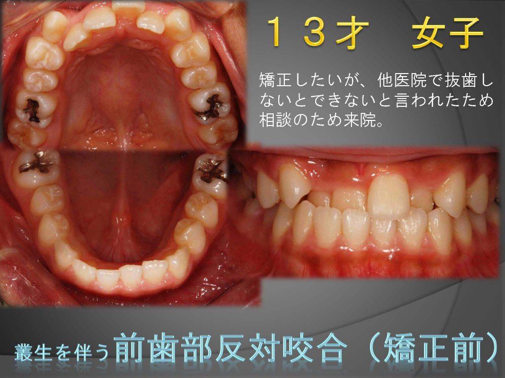 永久歯に全部生え変わっても前歯だけ反対にかみ合っている!