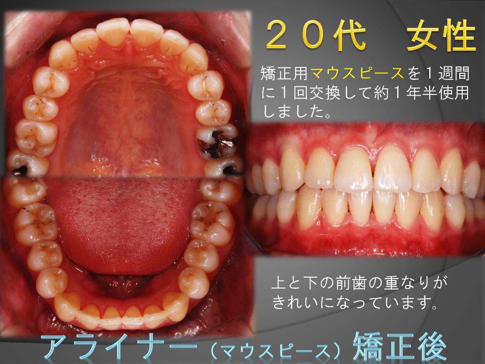 アライナー矯正ってどの程度の歯ならびまで治せるの?