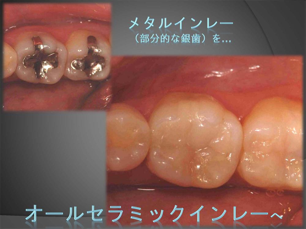 銀歯を白いものに・・・