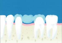 (虫歯治療方法)ブリッジ