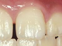 虫歯の処置(初期)C0ケア後白濁が消えました