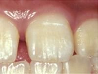 虫歯の処置(初期)C0初期 白濁が見られます