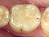 虫歯の処置(中期)CRF(レジン充填)施術後