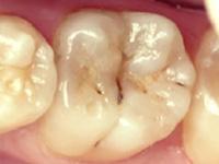 虫歯の処置(中期)CRF(レジン充填)施術前