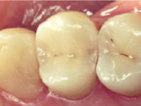 虫歯の処置(後期)施術後