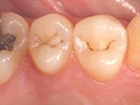 虫歯の処置(初期)シーラント処理前