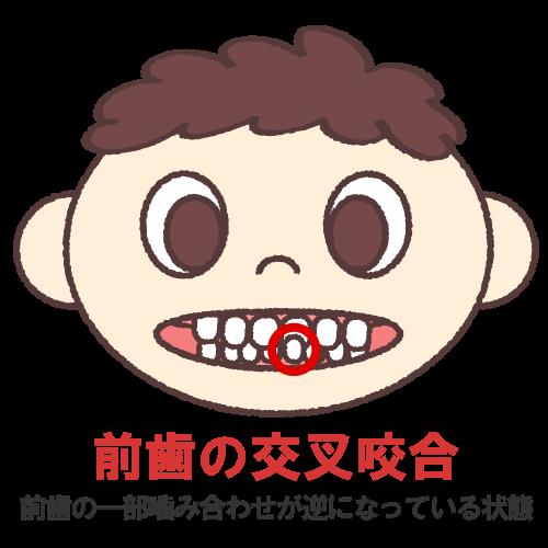 前歯の交叉咬合(こうさこうごう)(前歯の一部噛み合わせが逆になっている状態)