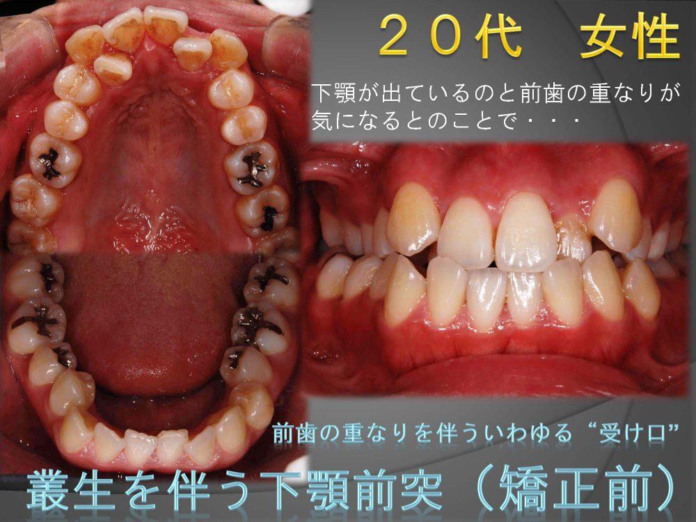 上の前歯が隠れてる???