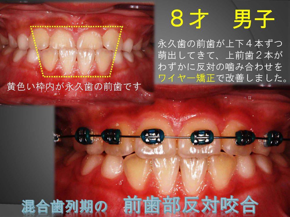 大人の前歯が反対の噛み合わせですごく気になる!