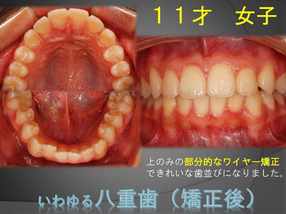 八重歯ってやっぱり気になるんですよね~