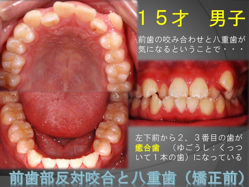 高校生になったら男子でも八重歯は気になる?