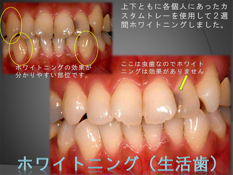 神経が残っている歯(生活歯)のホワイトニング