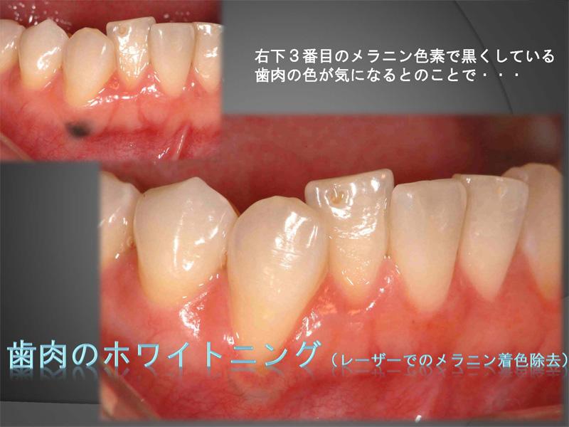 歯肉の色が気になる方へのホワイトニング