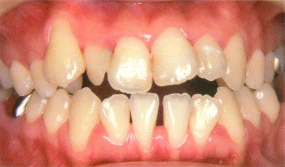 歯周病定期検診2