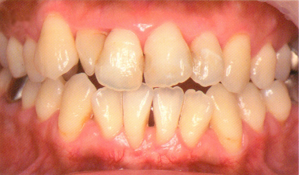 歯周病定期検診4