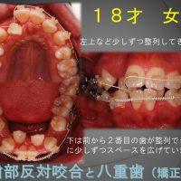 この状態からでも綺麗な歯ならびになるのかなぁ~?