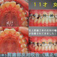 右の前歯だけ少しだけ反対???