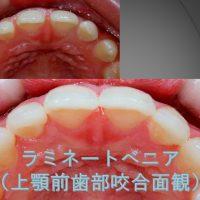 前歯のすき間をどうしよう?②